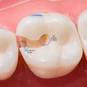 operative-dentistry
